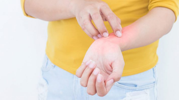 jak pielęgnować skórę przy AZS