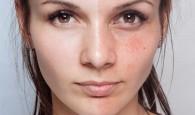 jak się pozbyć niedoskonałości skóry